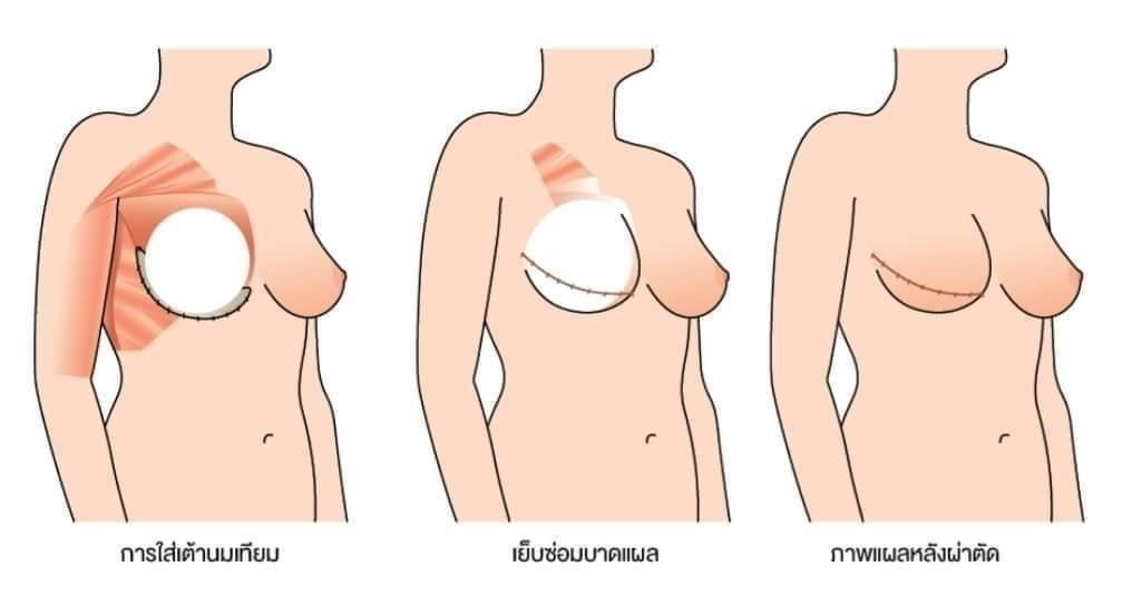 การผ่าตัดมะเร็งเต้านม ควรทำการเสริมสร้างเต้านมใหม่ในครั้งเดียวกันหรือไม่? มีความปลอดภัยมากแค่ไหน? และมีทางเลือกใดบ้าง?